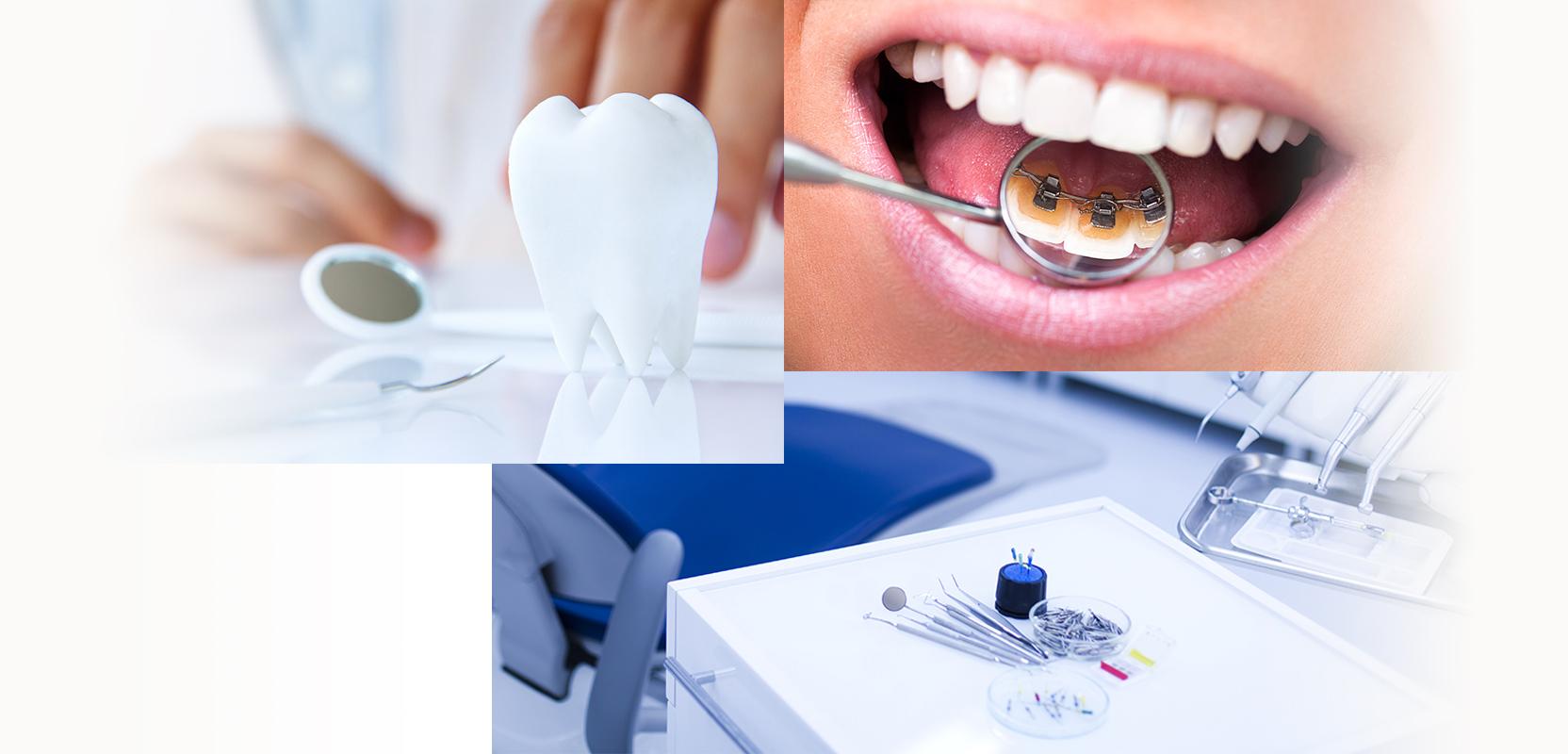 Implant dentaire moins cher marseille - Hydropulseur dentaire pas cher ...