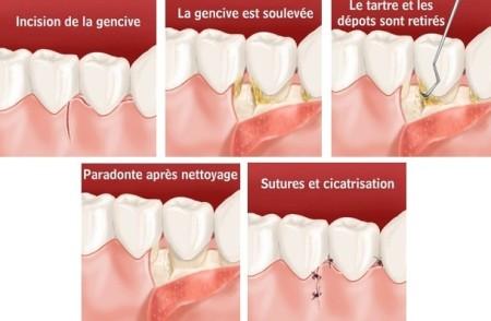 assainissement parodontal par lambeau