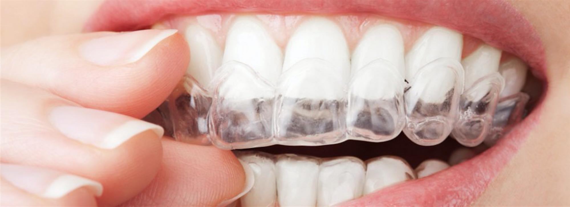 chirurgien dentiste blanchiment des dents