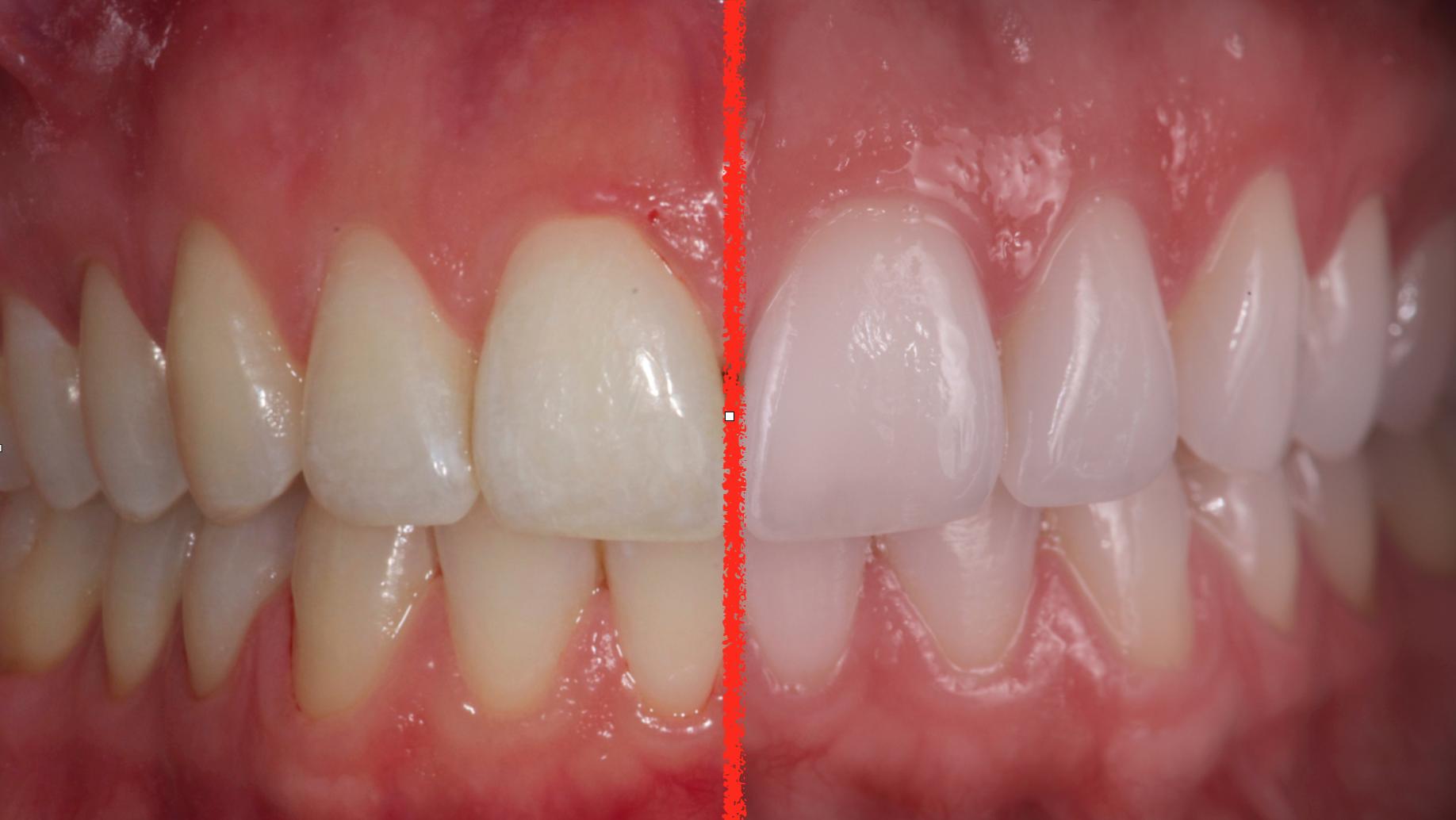 solution blanchiment des dents