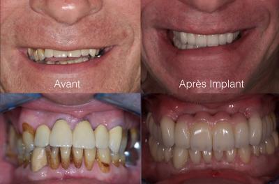 implant dentaire avant apr s par des professionnels marseille cabinet maupassant. Black Bedroom Furniture Sets. Home Design Ideas